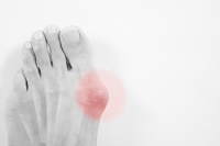 Where Does a Bunion Develop?